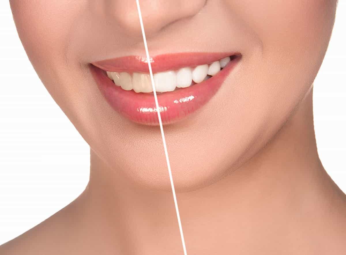 Дисфункция височно челюстного сустава лечение